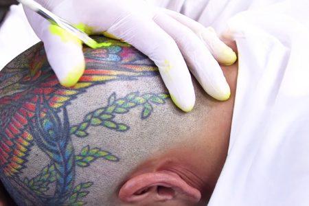 Tattoos Last Forever Skin