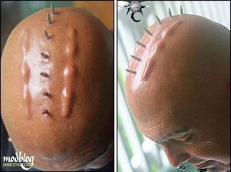 12 Most Bizarre Body Implants