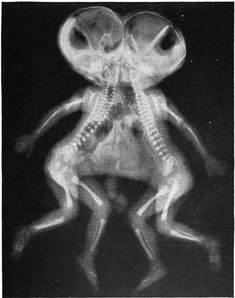 split brain and conjoined twins individuals Separating conjoined twins is one of  you have to look at how the individual who is set conjoined  we can see the tremendous amount of conjoined brain.