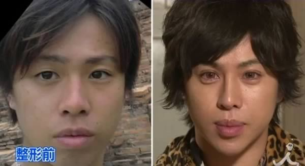 8 More Of The Craziest Plastic Surgeries To Look Like Someone Else