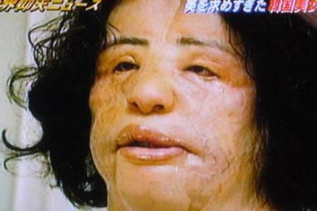 10 Worst Plastic Surgery Disasters Oddee